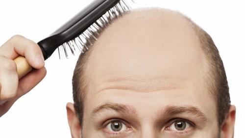 man met kaal hoofd